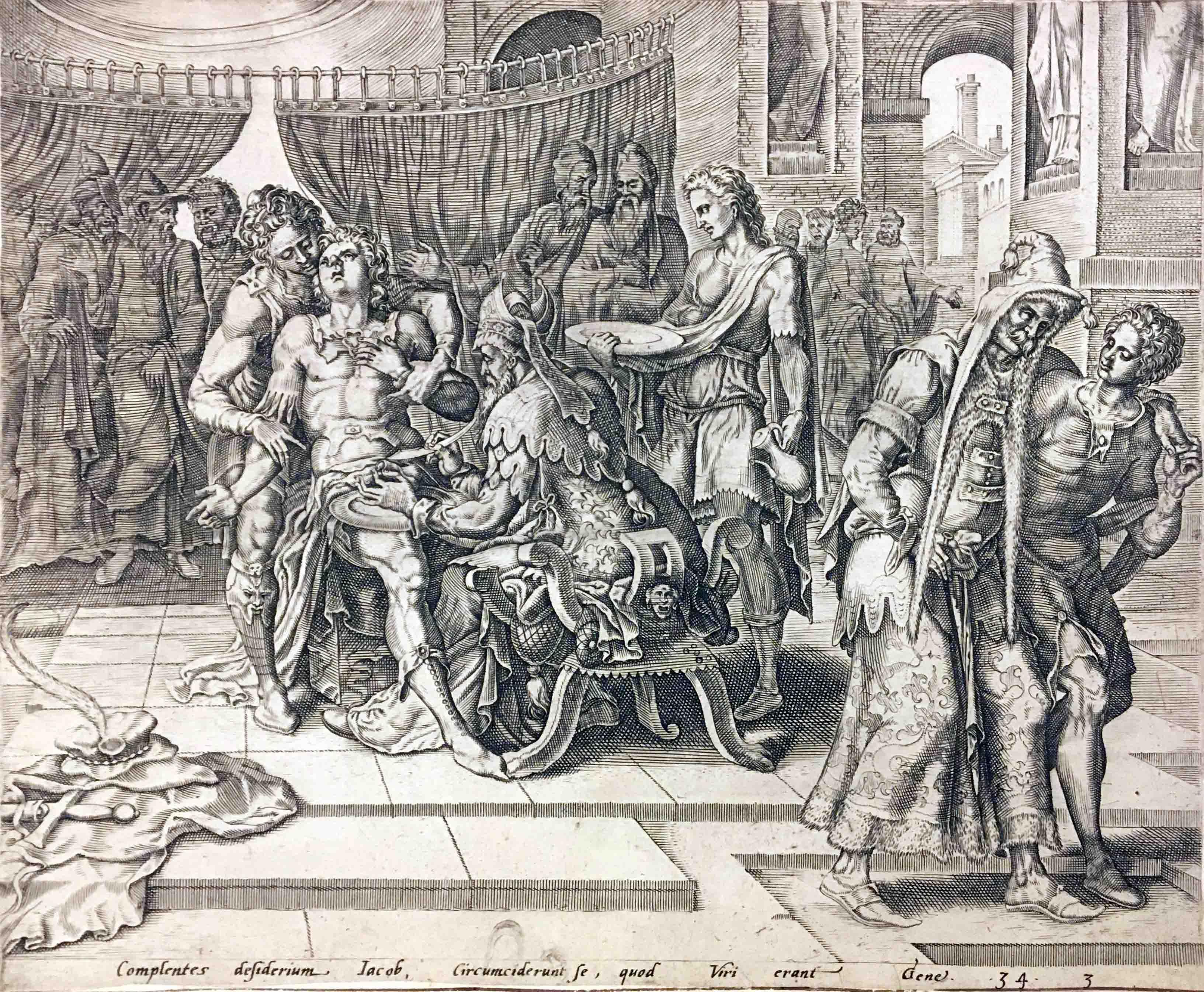 Shechemova obřízka (Gen. 34)